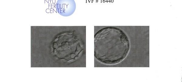blastocytes.JPG